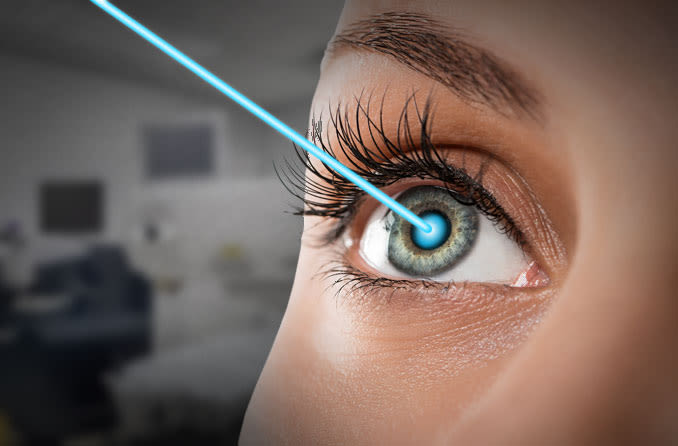 The Fact on Cataract Laser Surgery